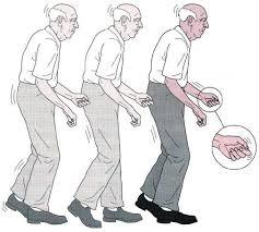 بیماری پارکینسون